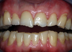 Bruxism - Jaw Pain